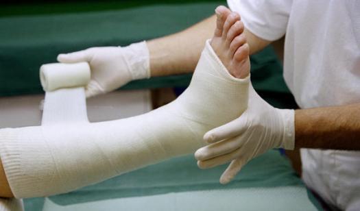 Broken_leg